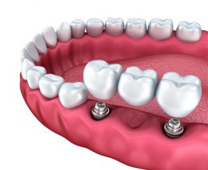 Implant Bridges