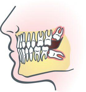 wisdom-teeth-extractions